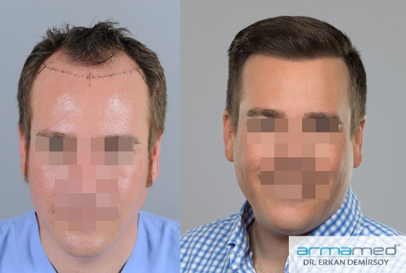 Dr. Erkan Demirsoy Before and After Photos
